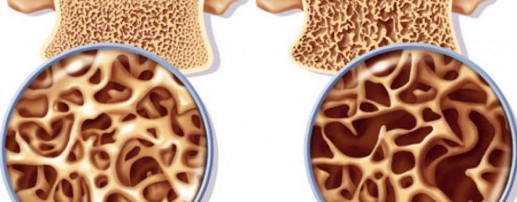 Sokan élnek az ingyenes csontsűrűség-vizsgálattal