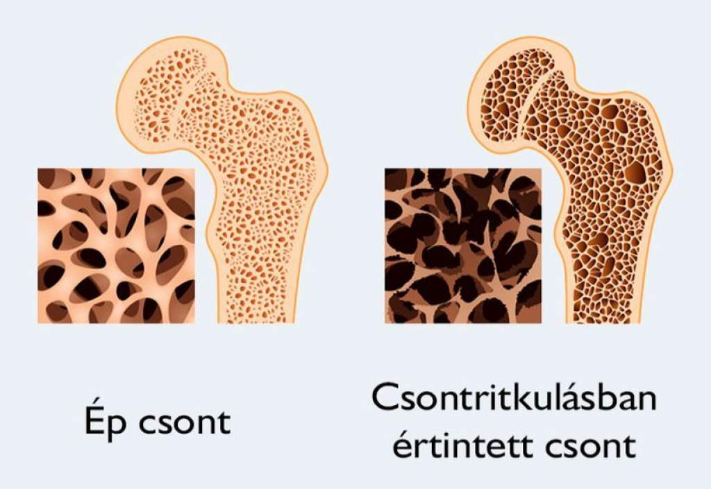 Csontritkulás-mérés az Egészségközpontban