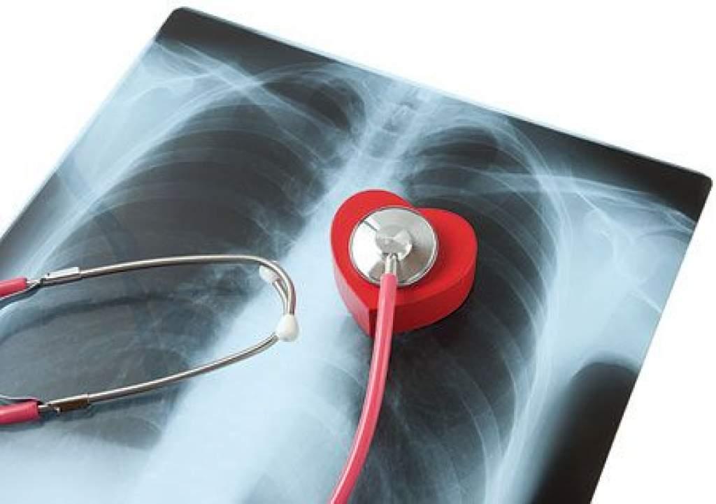 Szünetel a tüdőszűrés Kiskunfélegyházán