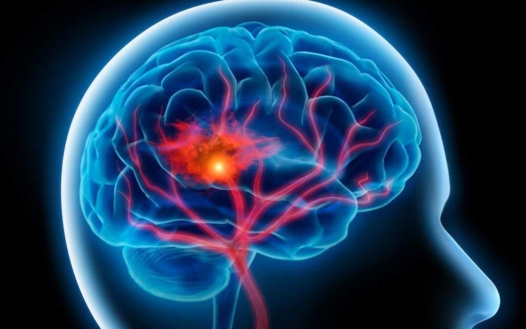 Óránként egy halálesetért a stroke felelős