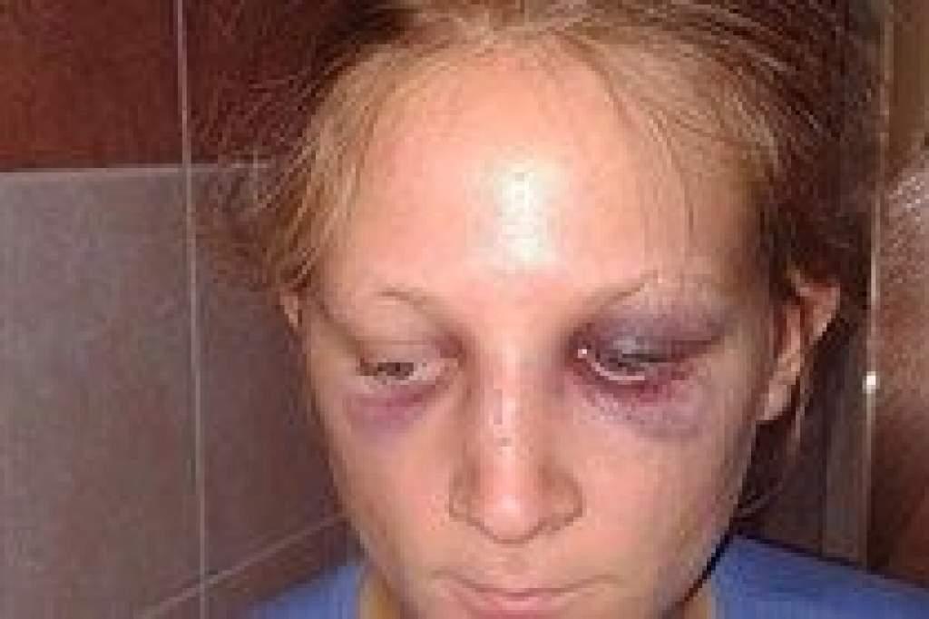 Elfogták a megvert lány bántalmazóját