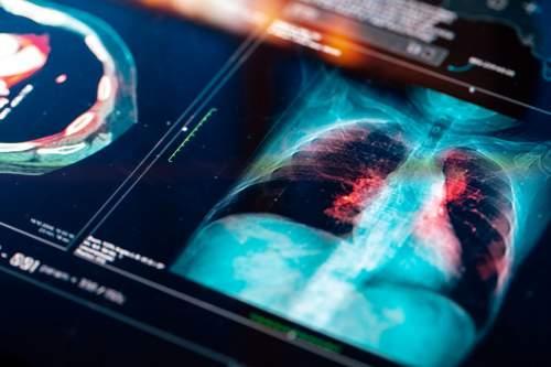 Alacsony dózisú ingyenes CT-vel a tüdőrák ellen
